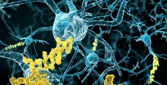 Alzheimer Krankheit